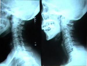 (图)颈椎骨质增生